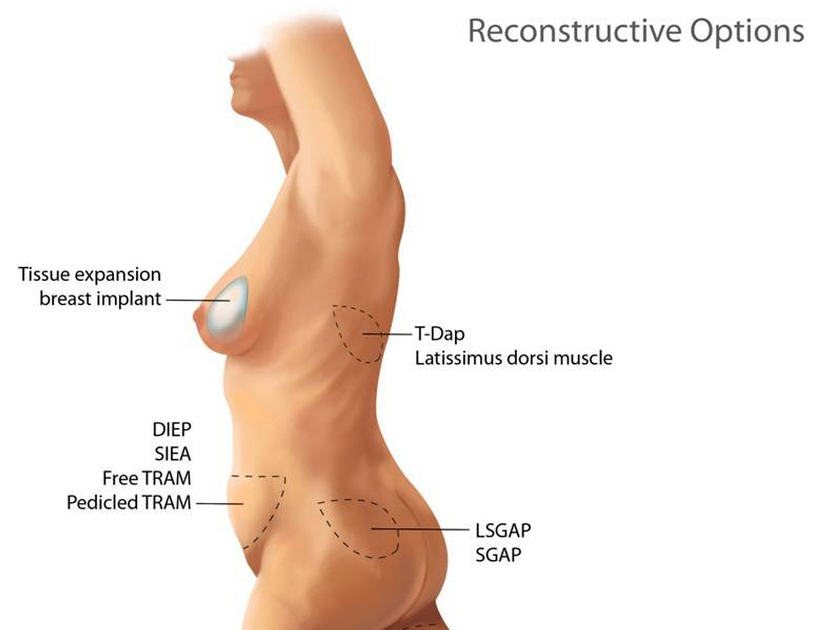 Find out about breast reconstruction options in Torrance