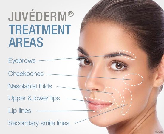 JUVÉDERM Treatment Areas