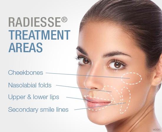 Radiesse Treatment Areas