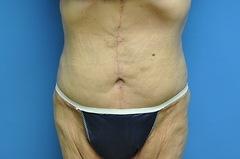 After Tummy Tuck Procedure