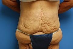 Before Tummy Tuck Procedure